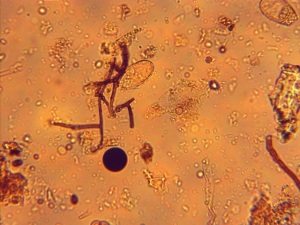Fungi (webbed 70% cocoa material), testate amoeba (next to fungi) and fungal spore (brown dot) Can you find the other fungal hyphae (strand)?